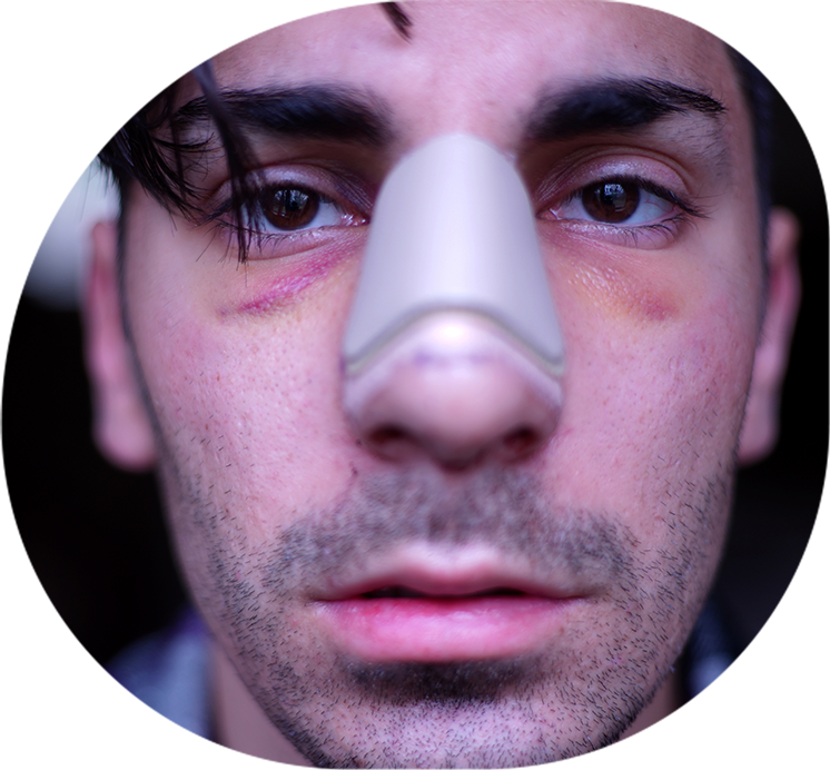 Facial Injury Compensation