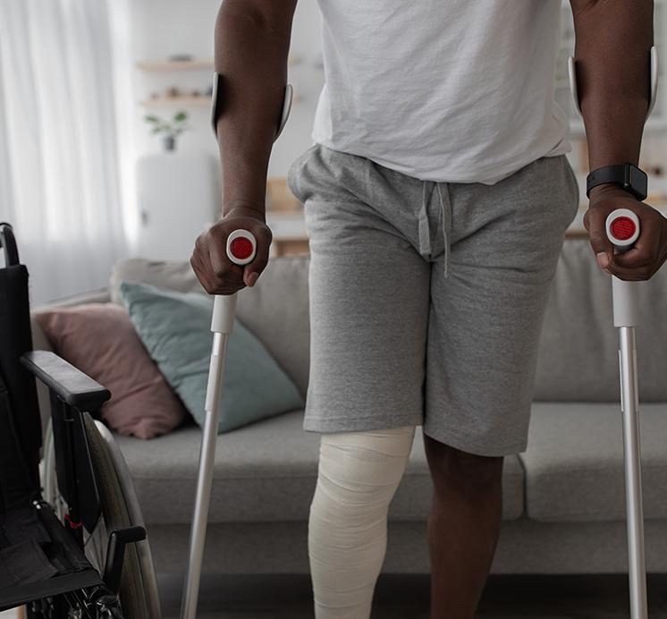 Leg Injury Compensation